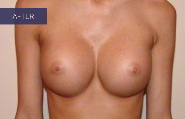 breast augmentation after picture