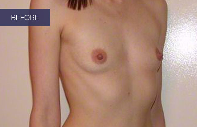 Utah's top breast augmentation surgeon