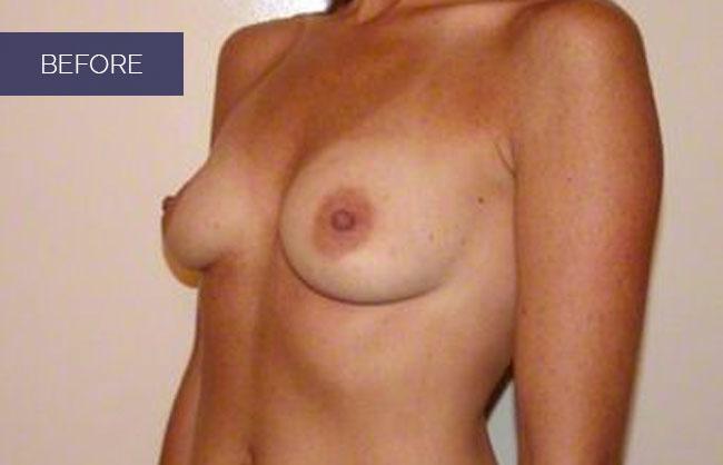 before getting a boob job in Utah