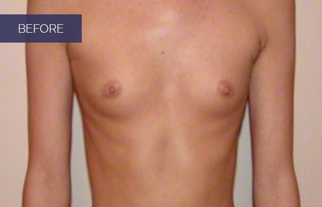 breast augmentation before pic